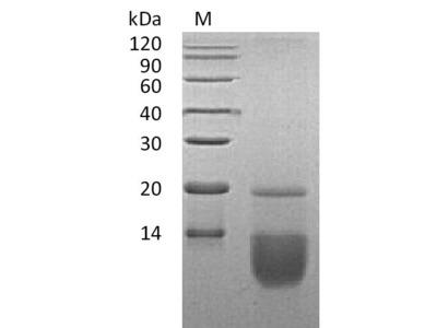 Recombinant Human C-C motif chemokine 3(CCL3) (Active) (E.coli)
