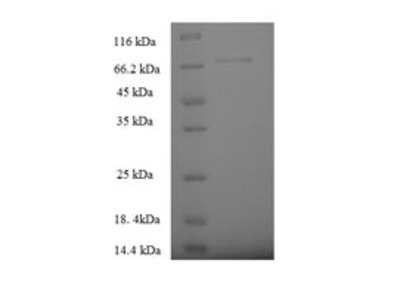 Recombinant Human Serine palmitoyltransferase 2(SPTLC2),partial