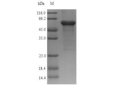 Recombinant Human Acid ceramidase(ASAH1) (E.coli)
