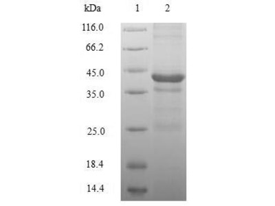 Recombinant Human Histone H2A.Z(H2AFZ) (E.coli)