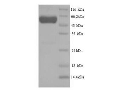 Recombinant Human Septin-7(SEPT7)