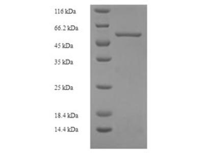 Recombinant Human Protein FAM49B(FAM49B) (E.coli)