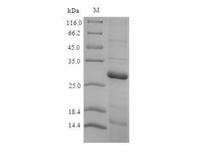 Recombinant Rat Type III iodothyronine deiodinase(Dio3),partial (E.coli)