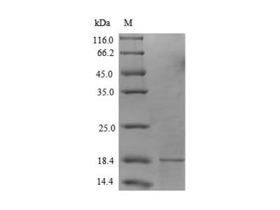 Recombinant Human Secretory phospholipase A2 receptor(PLA2R1) ,partial (Mammalian cell)