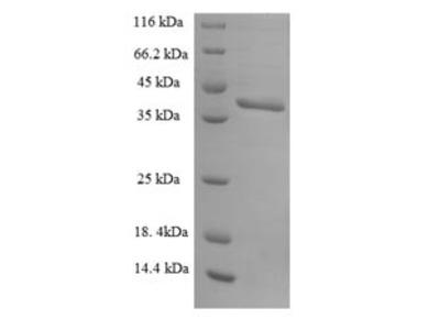 Recombinant Human U2 small nuclear ribonucleoprotein B(SNRPB2)