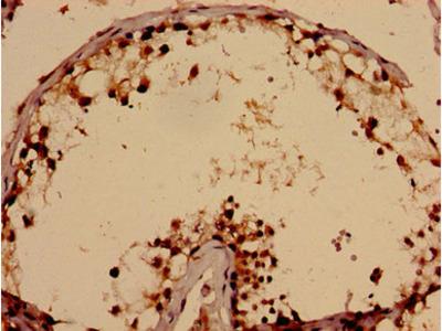 TBC1D31 Antibody