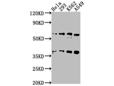 TRIM65 Antibody