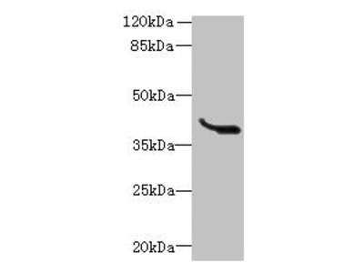 LRTM1 Antibody