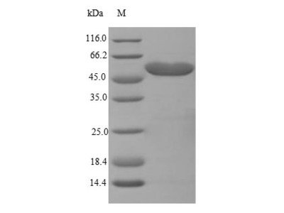 Recombinant Mouse Trifunctional enzyme subunit beta, mitochondrial(Hadhb) (E.coli)