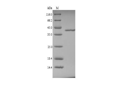 Recombinant Pig Coagulation factor XII(F12),partial (Yeast)