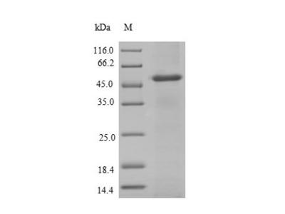 Recombinant Human Arylamine N-acetyltransferase 2(NAT2) (E.coli)