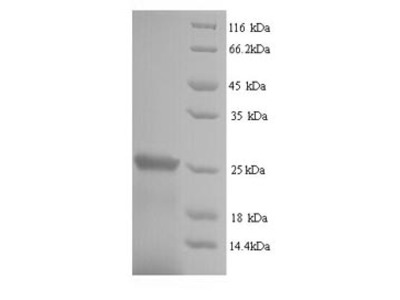 Recombinant Human Suppressor of cytokine signaling 1(SOCS1) (Yeast)