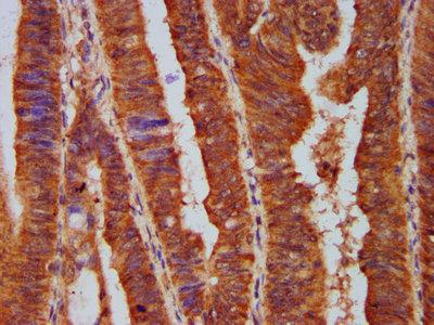 PPP2R5E Antibody