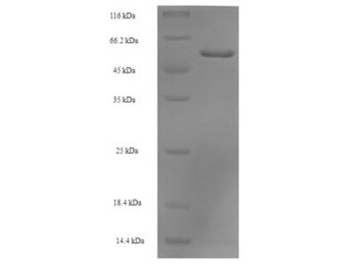 Recombinant Human Septin-2(SEPTIN2)