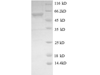 Recombinant Mouse Dual specificity mitogen-activated protein kinase kinase 4(Map2k4) (E.coli)