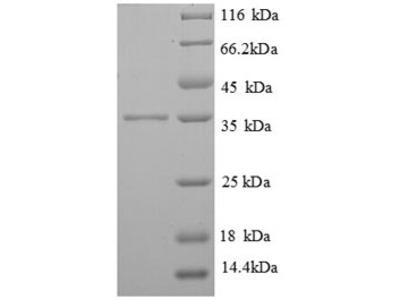 Recombinant Human High affinity immunoglobulin epsilon receptor subunit gamma(FCER1G) (E.coli)