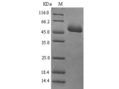Recombinant Human Mucosal addressin cell adhesion molecule 1(MADCAM1),partial (E.coli)