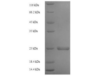 Recombinant Human Stromal cell-derived factor 2(SDF2)