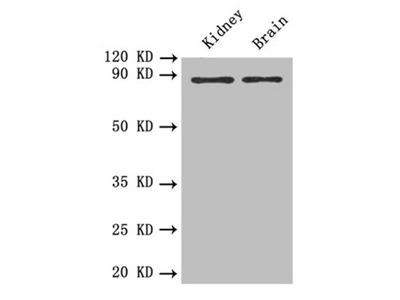 PTPRE Antibody