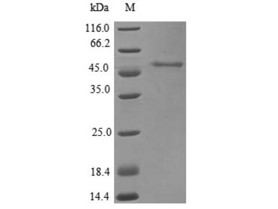Recombinant Pan troglodytes Acid ceramidase(ASAH1) (E.coli)