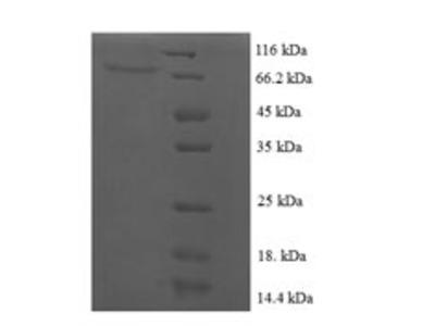 Recombinant Human papillomavirus type 16 Regulatory protein E2(E2) (E.coli)