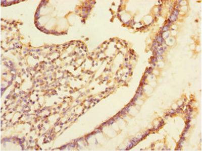 TRIAP1 Antibody