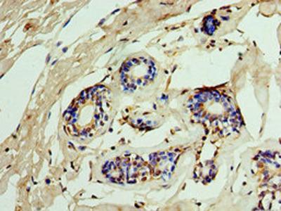 IMPDH2 Antibody