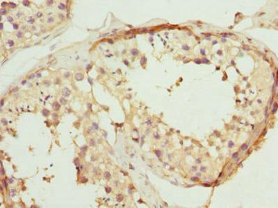 PTPRB Antibody