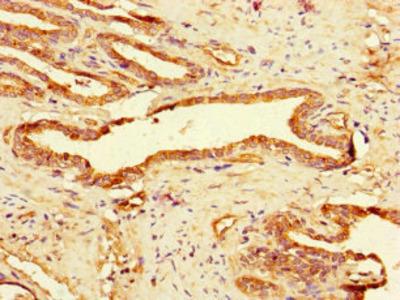 GAA Antibody