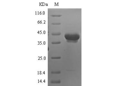 Recombinant Human Neurotrypsin(PRSS12),partial