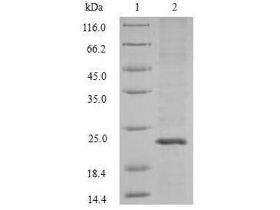 Recombinant Streptococcus pyogenes serotype M1 Adenine phosphoribosyltransferase(apt) (Baculovirus)
