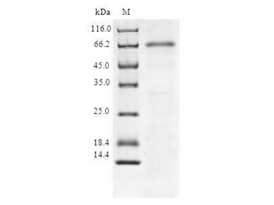 Recombinant Human NAD-dependent protein deacetylase sirtuin-6(SIRT6) (E.coli)