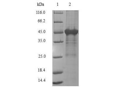 Recombinant Human Adenine phosphoribosyltransferase(APRT) (E.coli)