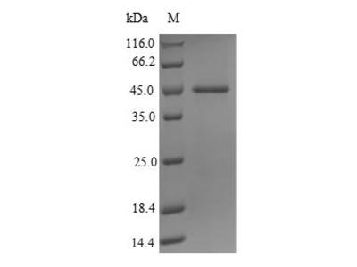Recombinant Human Probable JmjC domain-containing histone demethylation protein 2C(JMJD1C),partial (E.coli)