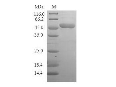 Recombinant Human BAG family molecular chaperone regulator 2(BAG2) (E.coli)