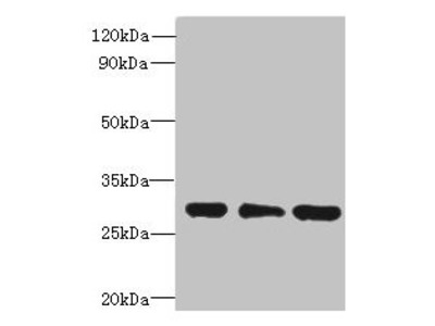 HDHD3 Antibody