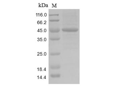 Recombinant Human Actin-like protein 8(ACTL8)