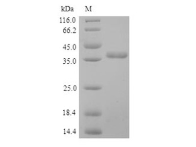 Recombinant Human Pulmonary surfactant-associated protein D(SFTPD) (Yeast)
