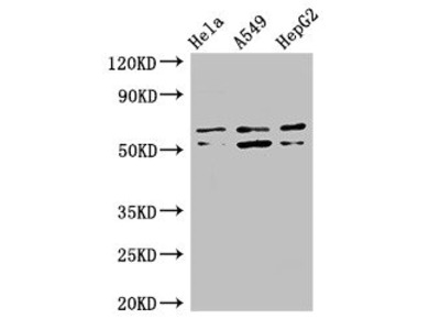 COQ8B Antibody