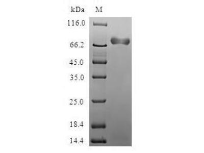 Recombinant Human Acidic mammalian chitinase(CHIA) (E.coli)