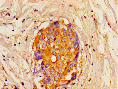 ITPR1 Antibody