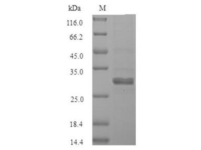Recombinant Human Sal-like protein 2 (SALL2)