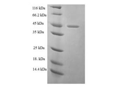 Recombinant Human Ezrin(EZR),partial (E.coli)