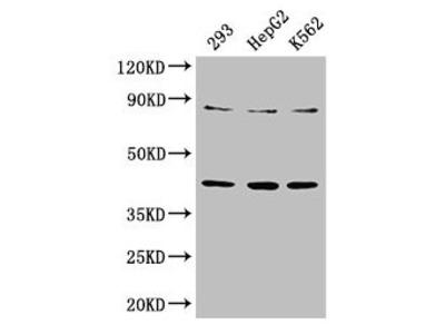 PTPA Antibody