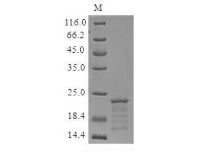 Recombinant Mouse Myoglobin(Mb) (Mammalian cell)