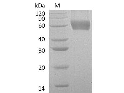 Recombinant Human Granulocyte-macrophage colony-stimulating factor receptor subunit alpha(CSF2RA),partial (Active) (Mammalian cell)