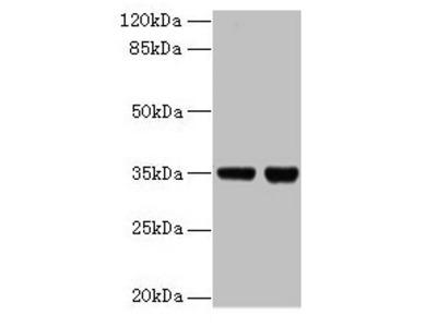 ZBED1 Antibody