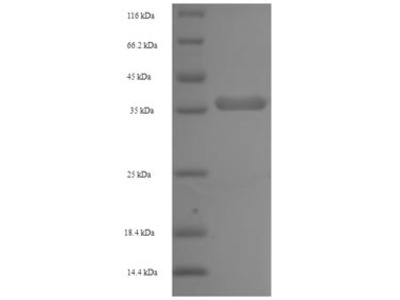Recombinant Pan troglodytes Lymphotoxin-beta(LTB),partial