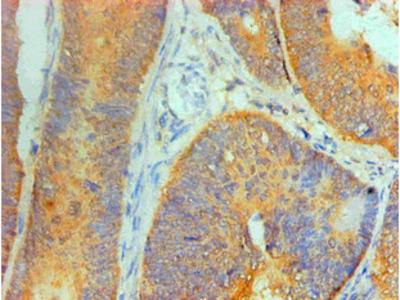 IL1F10 Monoclonal Antibody