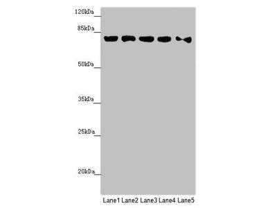 MCCC1 Antibody